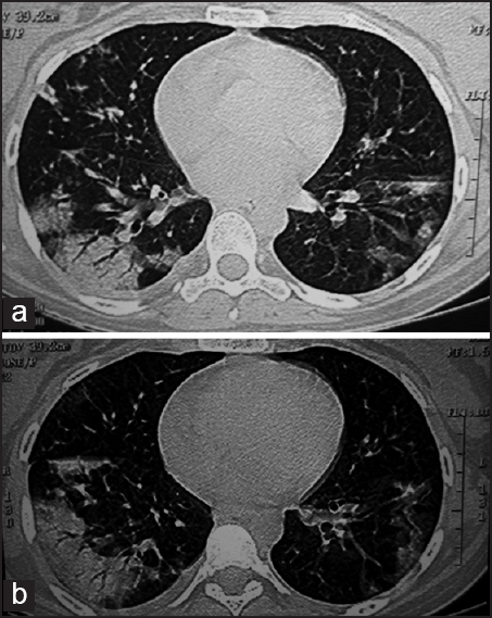 Figure 1: (a and b) HRCT thorax showing consolidation and patchy infiltrative changes in both lungs (Rt. > Lt.) along with air bronchograms