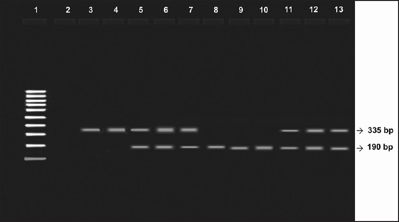 Figure 1: Lane 1 indicates 100bp DNA ladder; Lane 2, 3 (Control), 335 bp: Homozygous II; Lanes 5-7 (HT), 335 bp, 190 bp: Heterozygous ID; Lanes 8-10 (CKD), 190 bp: Homozygous DD; Lanes 11-13 (HT-CKD), 335 bp,190 bp: Heterozygous ID