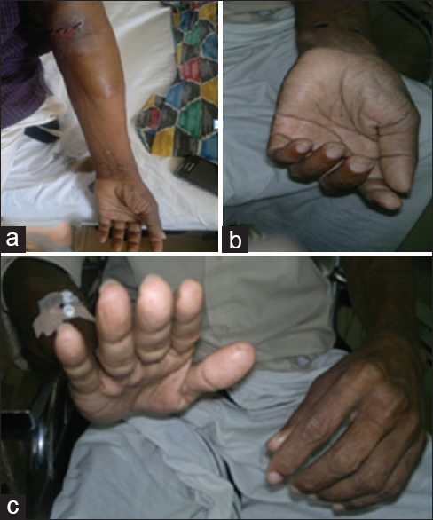Figure 1: (a) Left brachiocephalic arteriovenous fistula. (b) Clawing of the left hand. (c) Inability to extend wrist and fingers of the left hand
