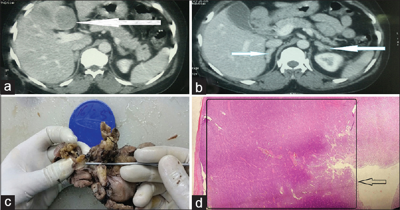 Figure 1: (a) Computed tomography scan with hepatic lesion. (b) Computed tomography scan abdomen with bilateral adrenal enlargement. (c) Gross specimen showing 0.5 cm × 0.5 cm lesion in the medial wall of the first part of the duodenum in proximity to the pancreas. (d) Scanner view of lesion suggesting of neuroendocrine tumor of intermediate-grade without perineural invasion, lymphovascular emboli, or muscular invasion and compressed normal tissue seen along left border