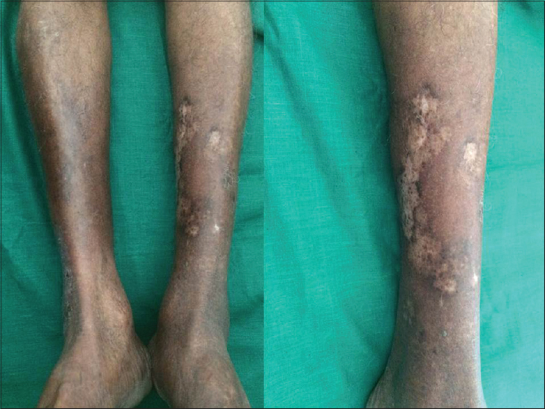 Figure 3: Depigmentation after 2 months of Anti-Koch's treatment