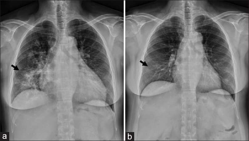 Figure 1: (a) A chest X-ray conducted in the emergency department revealed cardiomegaly and patchy airspace consolidations with infiltrations in the right lung field. (b) One year later, another chest X-ray revealed normal heart size without visible airspace consolidations