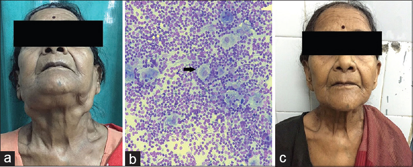 Figure 1: (a) Pre-treatment clinical picture showing bilateral neck lymphadenopathy,(b) Fine needle aspiration cytology image H and E, ×40 showing macrophages with prominent emperiopolesis (arrow) , and (c) Post-treatment clinical picture showing complete resolution of neck lymphadenopathy