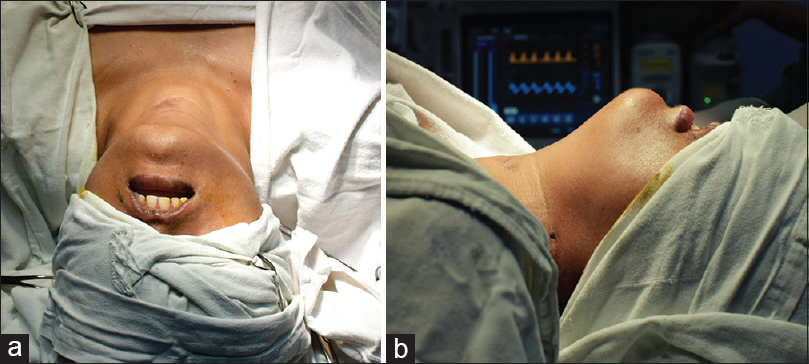Figure 1: (a) Top view and (b) Lateral view of the patient showing adequate extension at the neck