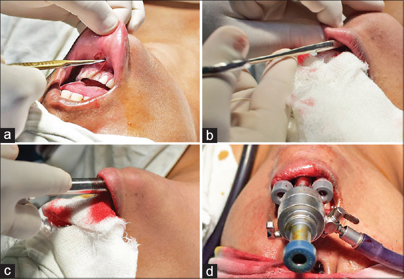 Figure 2: (a) 10 mm incision is made in the midline for camera port. (b) Space is created with artery forceps. (c) 10 mm port is inserted above the mandible into the neck. (d) Final placement of working ports through the vestibule