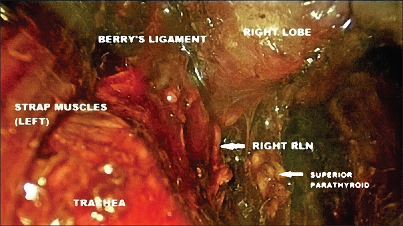 Figure 4: Endoscopic view from cranial end showing right recurrent laryngeal nerve (RLN)