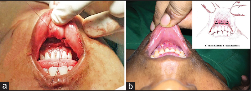 Figure 6: (a) Approximation of incision with interrupted sutures in two layers. (b) Postoperative view of port sites after closure with inset showing a schematic view of port insertion sites