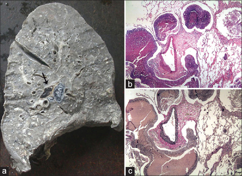 Figure 4: Case 4 - (a) The cut surface of the right lung shows gray-white prominence of the lobular septa and bronchovascular connective tissues with occlusive, fresh arterial thrombus (arrow) and metastatic infiltration of hilar lymph nodes; the lymphatics around muscular artery is plugged by tumor emboli as seen on (b) Hematoxylin and eosin and (c) elastic van Gieson stained slides (×100)