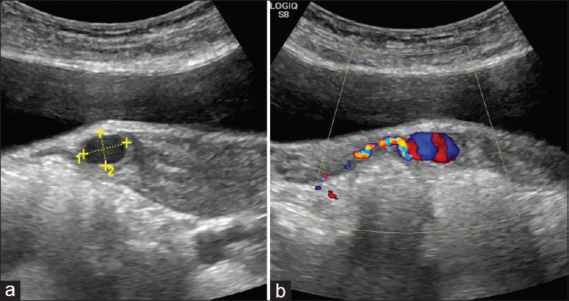 Figure 1: (a) Grayscale USG showing an anechoic cystic lesion in the lower uterine segment; (b) Color Doppler showing color filling of the lesion in communication with the right uterine artery suggestive of a pseudoaneurysm